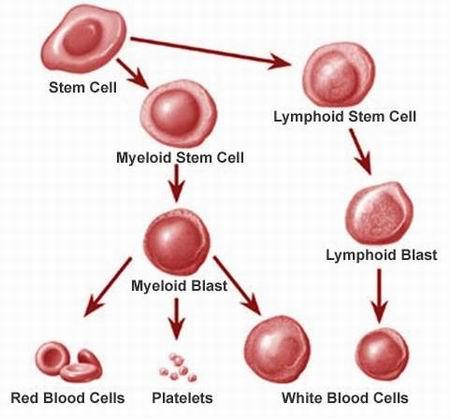 Image result for penyebab leukemia penyakit